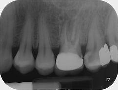 Radiografia endorale che mostra un dente devitalizzato con corona protesica ed un dente con grossa carie penetrante