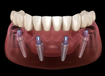 All On Four un'arcata dentaria copleta su impianti osteointegrati. Addio dentiera
