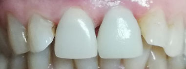 dente in ceramia integrale con impianto dentale osteointegrato