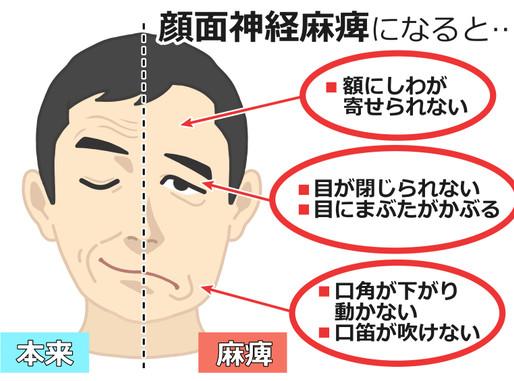 顔面神経麻痺の治療可能です