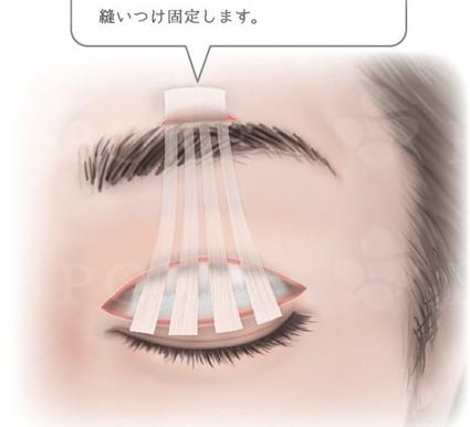 ③眼瞼下垂 生まれつきの場合