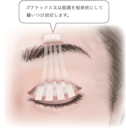 豊川市 眼科 眼科みなみアイクリニック 先天性眼瞼下垂