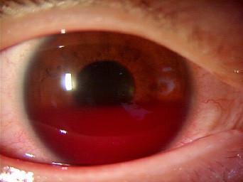 眼科 スポーツ外傷 バドミントン