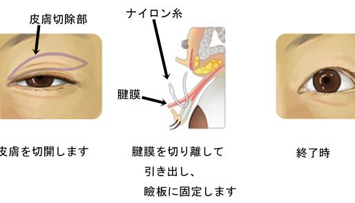 ②眼瞼下垂~手術