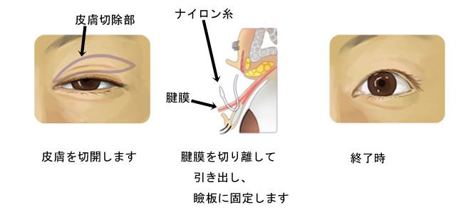 豊川市 眼科 眼科みなみアイクリニック うぶかたゆり 眼瞼下垂 きれいになりたい 一重手術 二重手術