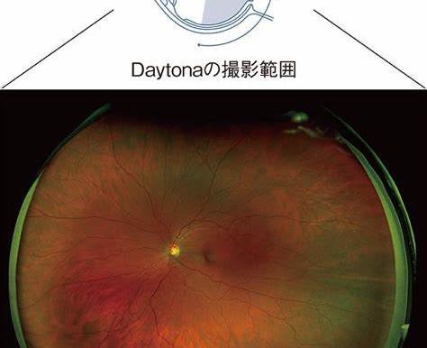 眼科検査シリーズ⑧ついに