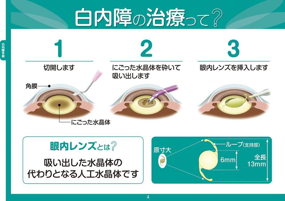 眼科みなみアイクリニック 最先端 日帰り 白内障手術