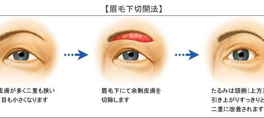 ⑤眼瞼下垂と皮膚のたるみ