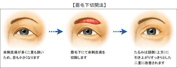 眼科 豊川市 眼科みなみアイクリニック うぶかたゆり 眼瞼下垂 眉下皮膚切除