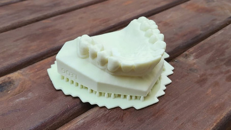 Impressão 3D em odontologia – Projeto prótese dentaria