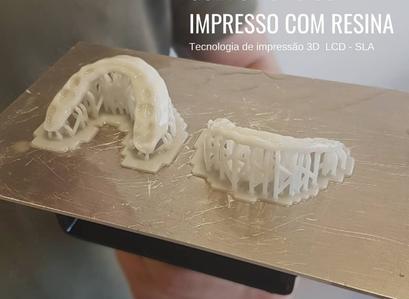 Quanto custa uma impressão 3D?
