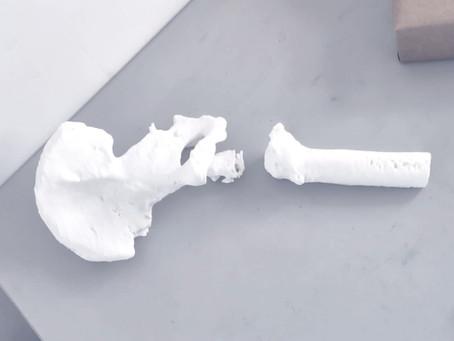 Impressão 3D de Guia cirúrgico – Projeto Quadril