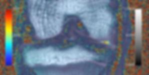 HPR OA MRI