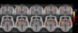 oxaliplatin induced polyneuropathy