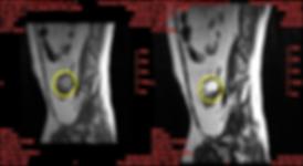 endometriosis MRI