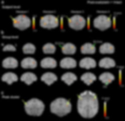 Brain activity fMRI
