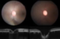glaucoma examination
