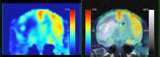 blood flow perfusion MRI