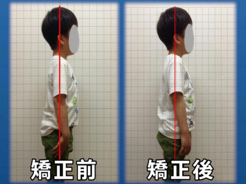 猫背矯正写真(ユイト).jpg