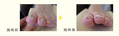 巻き爪 治療 前後