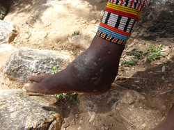Nditaye the dreaded madura foot