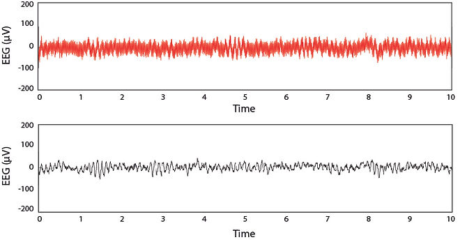 Active shielding reduces interference in dry EEG recordings