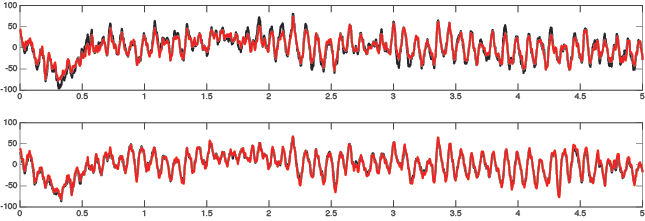 Comparison between wet and dry EEG recordings