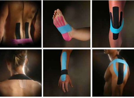 Kinesio Taping at SP.OR.T.S.