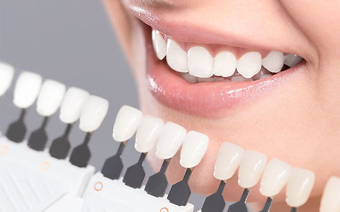 composite-fillings-945x590.jpg