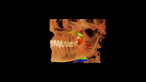 Geyman,Hannah_3D_Volume.jpg