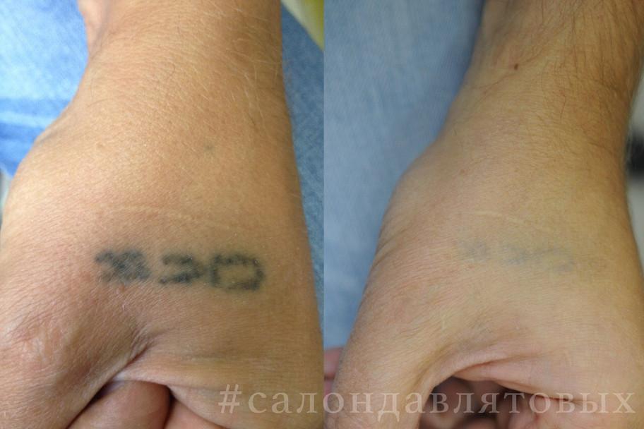 Качественное удаление тату без рубцов и шрамов