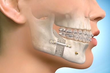 ORTHOGNATHIC SURGERY.png