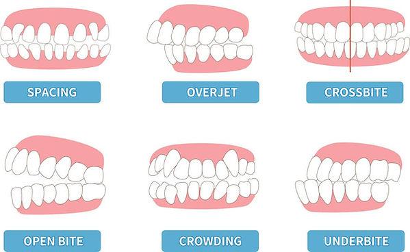 common-kids-teeth-problems.jpg