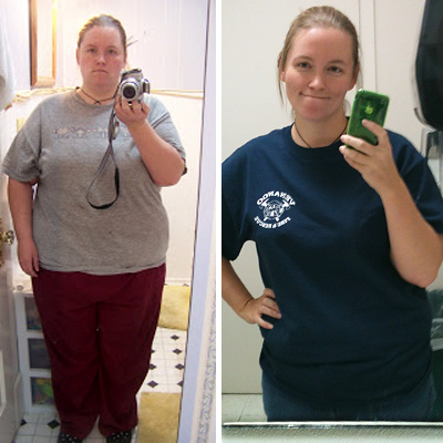 Marcia-Case-before-and-after-weightloss-400