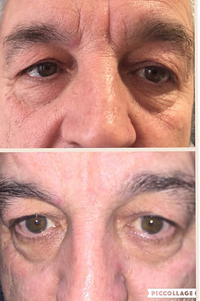 Before and after results of HIFU facial treatment