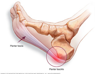 Plantar fasciitis - Symptoms and Causes