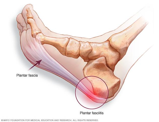 Plantar fasciitis - symptoms and causes