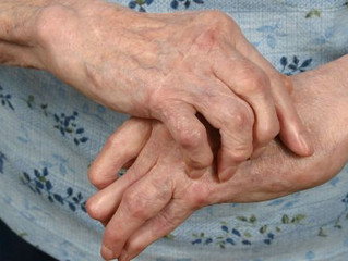 5 Simple Ways To Manage Hand Osteoarthritis