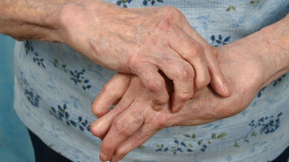Hand osteoarthritis has its challenges, but there are several ways you can make some simple lifestyle adjustments to live more comfortably with this condition.