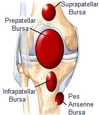 What is Housemaid's Knee?