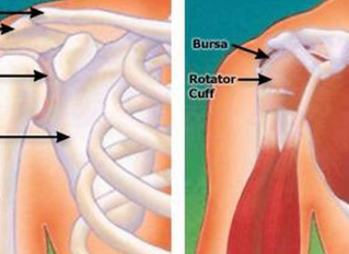 How to Know If a Rotator Cuff Is Torn