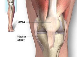 Patellar Tendinitis - Symptoms and Causes