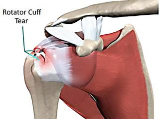Rotator Cuff Tendinitis