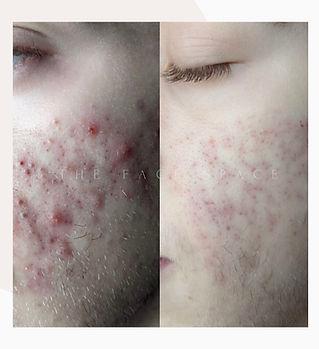 BF acne 1.jpg