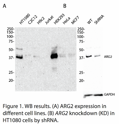Validated ARG2 Lentiviral shRNA #V1632