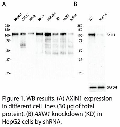 Validated AXIN1 Lentiviral shRNA #V1831
