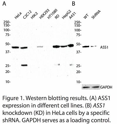 Validated ASS1 Lentiviral shRNA #V1771