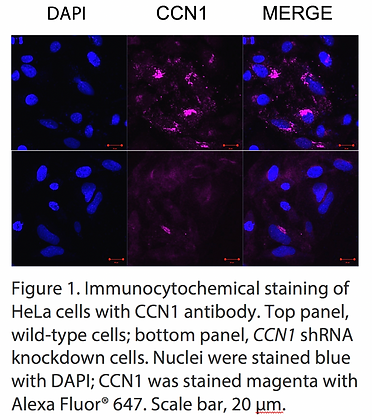 Validated CCN1 Lentiviral shRNA #V1951