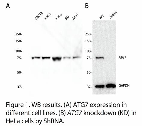 Validated ATG7 Lentiviral shRNA #V1737