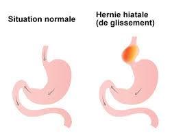 Hernie-Hiatale-et-ostéopathie